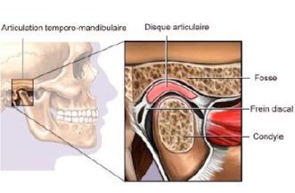articulation temporo-man-dibulaire, localisation et coupe