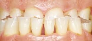 dental abrasions