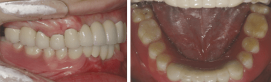 dental avulsion