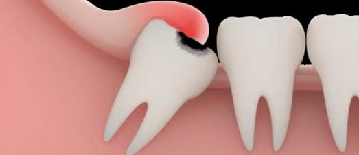 Inflammation des dents de sagesses