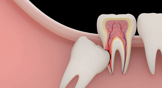 Root wisdom tooth