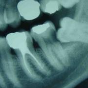 Chirurgie dents de sagesse