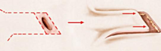 lesion stomatologie